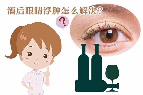 为什么酒后眼睛会浮肿以及眼睛浮肿怎么解决
